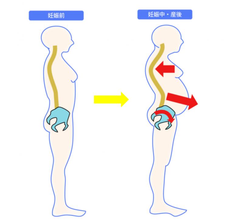 出産後の腰痛 恥骨痛 尿漏れ